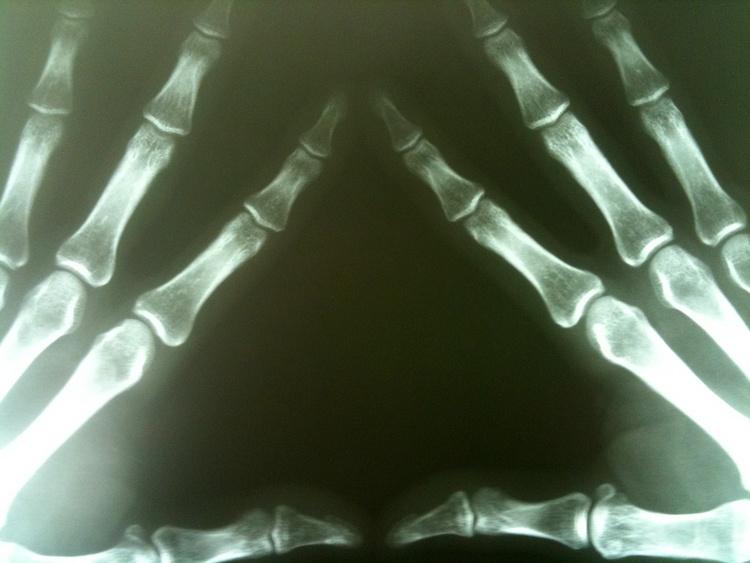 Что такое костная мозоль и ее лечение