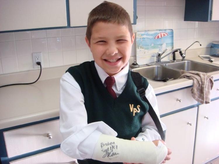 Перелом руки - причины, симптомы, диагностика и лечение