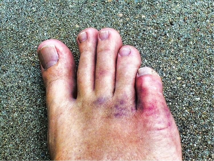 Что делать при переломе мизинца на ноге
