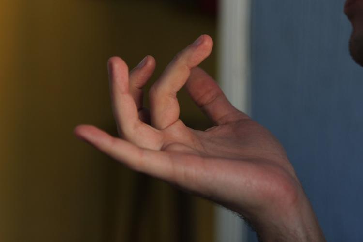 Как правильно разработать пальцы на руке после перелома