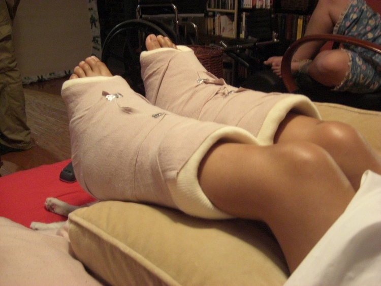 Реабилитация после перелома пятки со смещением — Сайт о лечении заболеваний суставов