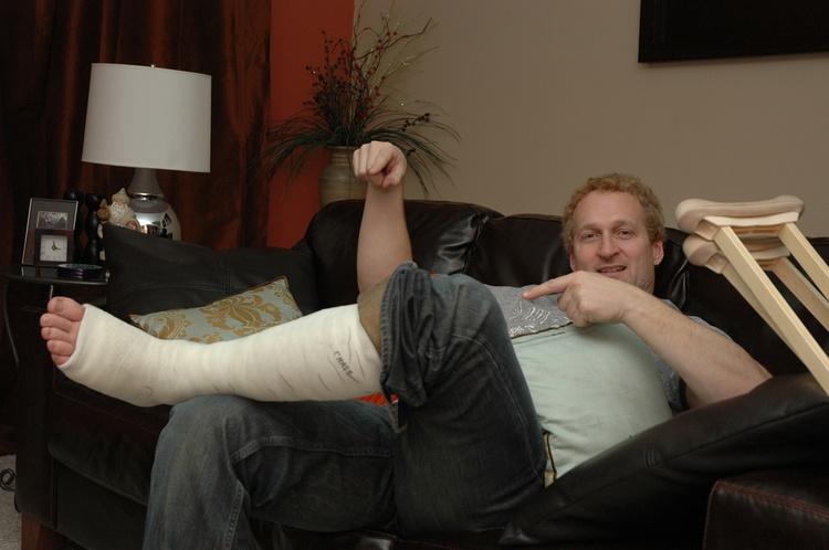 Симптомы и лечение переломов ноги в зависимости от локализации и вида травмы
