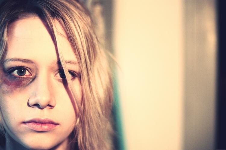 Картинка девушки с фингалом