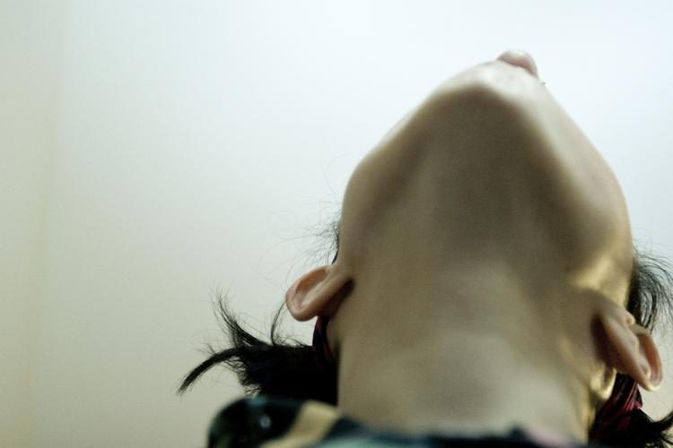 Перелом нижней и верхней челюсти: признаки и лечение