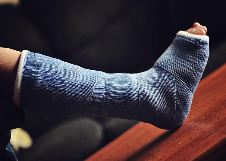 Перелом стопы: классификация, причины, симптомы и лечение