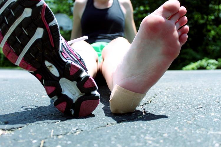 Синяк на ноге, пятке и под ногтем: причины, лечение; как быстро скрыть застарелый синяк