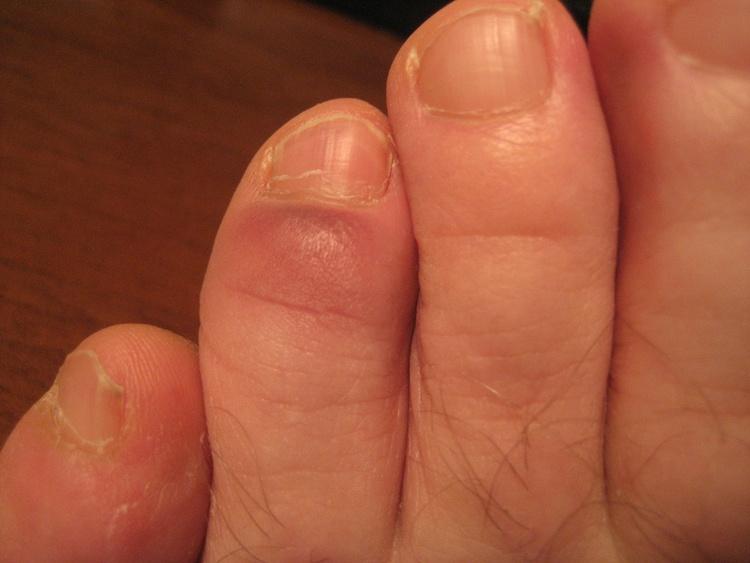 Ушиб пальца на ноге, лечение, снятие боли