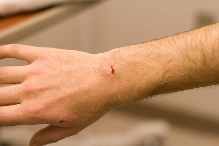 Лечение ушиба руки в домашних условиях