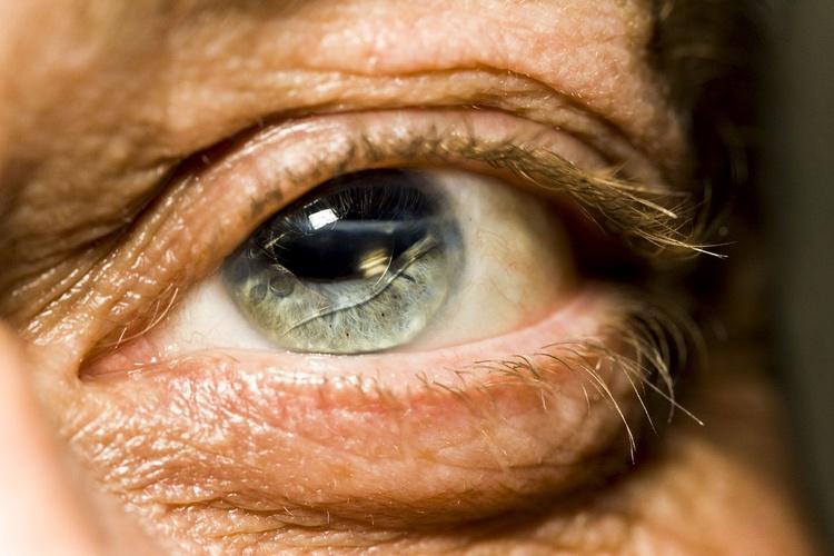Ушиб глаза степени контузии глазного яблока симптомы первая помощь и лечение